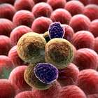 Células do sistema imunológico estimulam câncer de mama