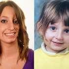 """Mulher de 22 anos convive com doença que """"afunda"""" seu rosto"""