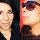 Após sequestro, blogueira tem alopecia areata e fica careca
