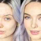 Blogueira faz vídeo para responder críticas sobre acne