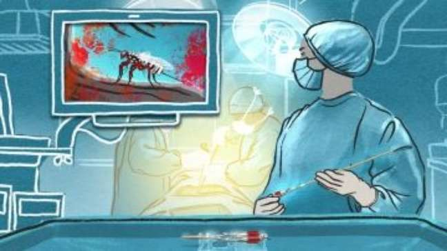 Vespa inspira cientistas a criar novo instrumento cirúrgico
